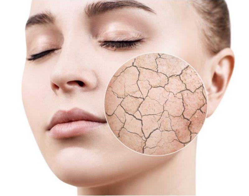 してはいけない顔脱毛直後の行動と肌が乾燥する原因と対処法